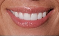 Howard A. Silver DDS in Brooklyn NY